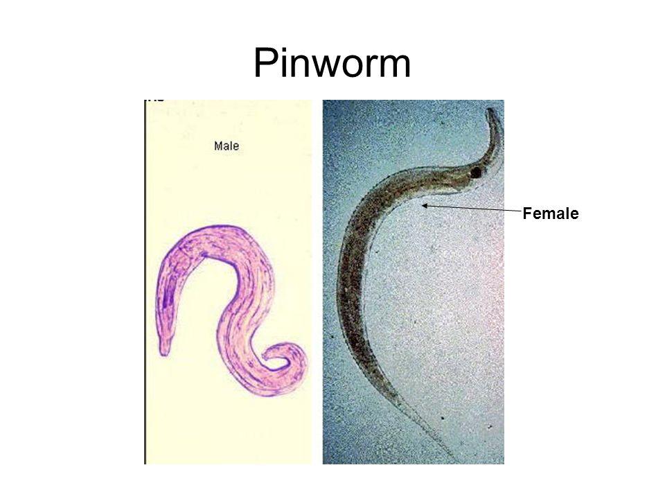 Pinworm Female