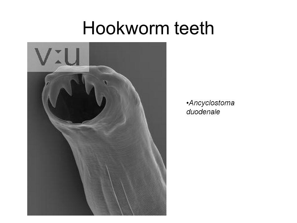 Hookworm teeth Ancyclostoma duodenale