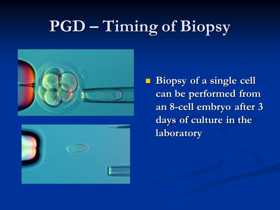 PGD – Timing of Biopsy Biopsy of a single cell can be performed from an 8-cell embryo after 3 days of culture in the laboratory
