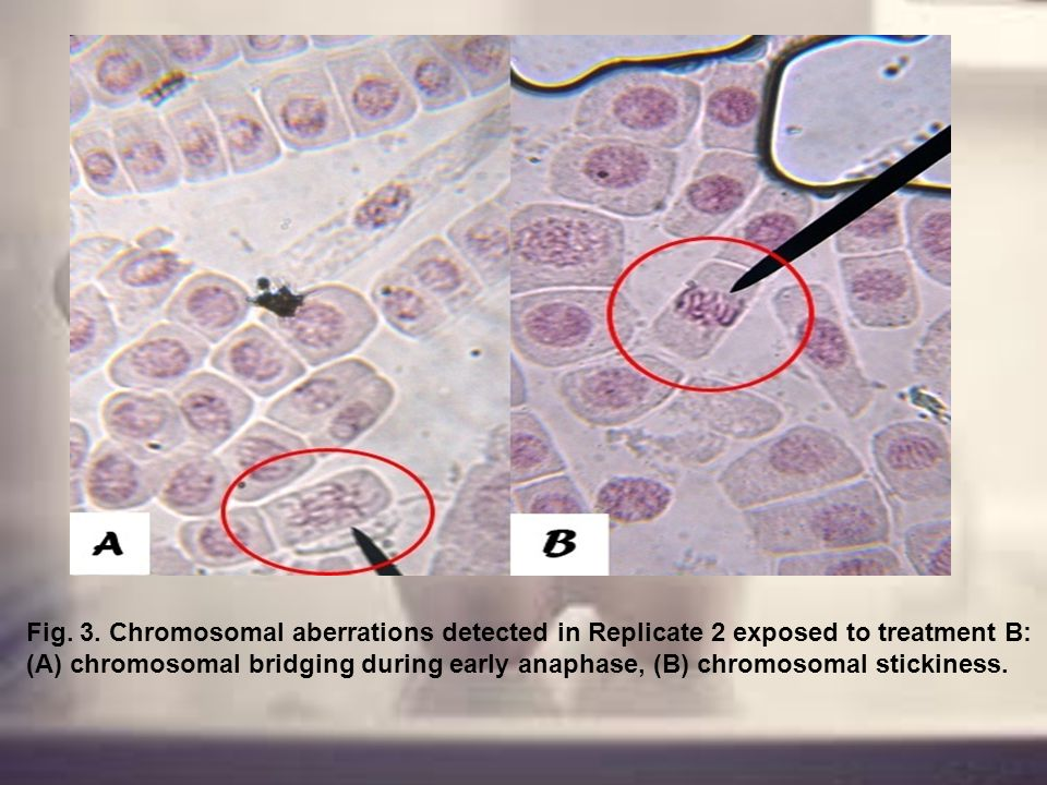 Fig. 3. Chromosomal aberrations detected in Replicate 2 exposed to treatment B: (A) chromosomal bridging during early anaphase, (B) chromosomal sticki