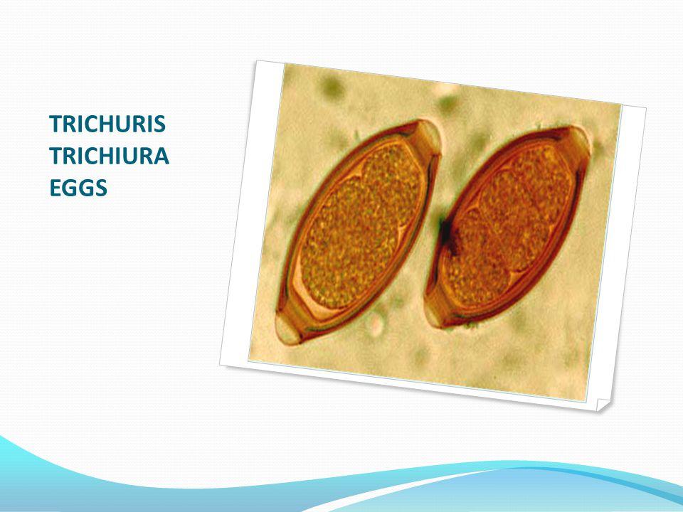 TRICHURIS TRICHIURA EGGS