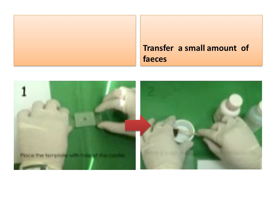 Transfer a small amount of faeces