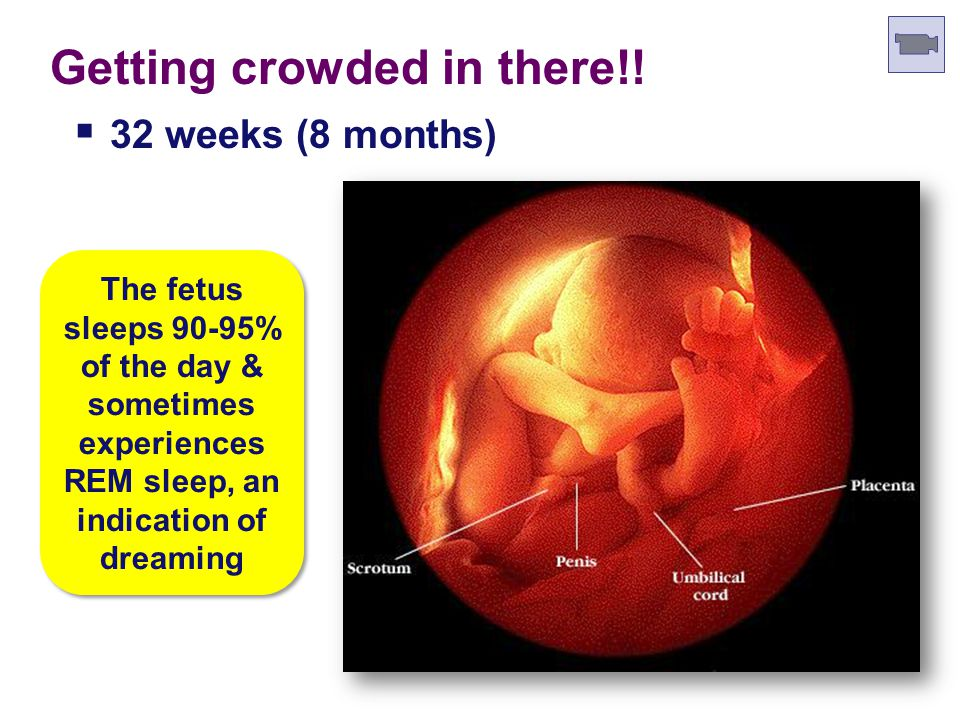 Human Fetal Development 30 weeks (7.5 months)