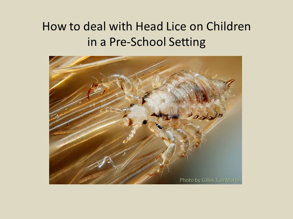 How to deal with Head Lice on Children in a Pre-School Setting Photo by Gilles San Martin