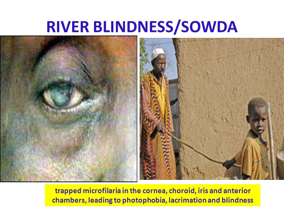 RIVER BLINDNESS/SOWDA trapped microfilaria in the cornea, choroid, iris and anterior chambers, leading to photophobia, lacrimation and blindness