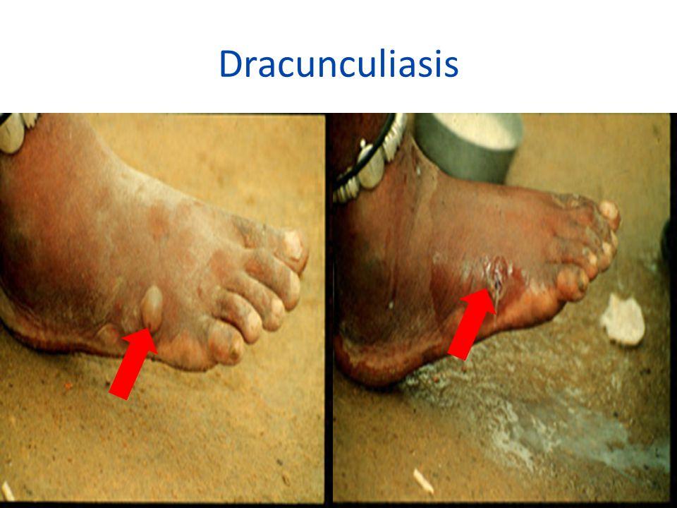 Dracunculiasis