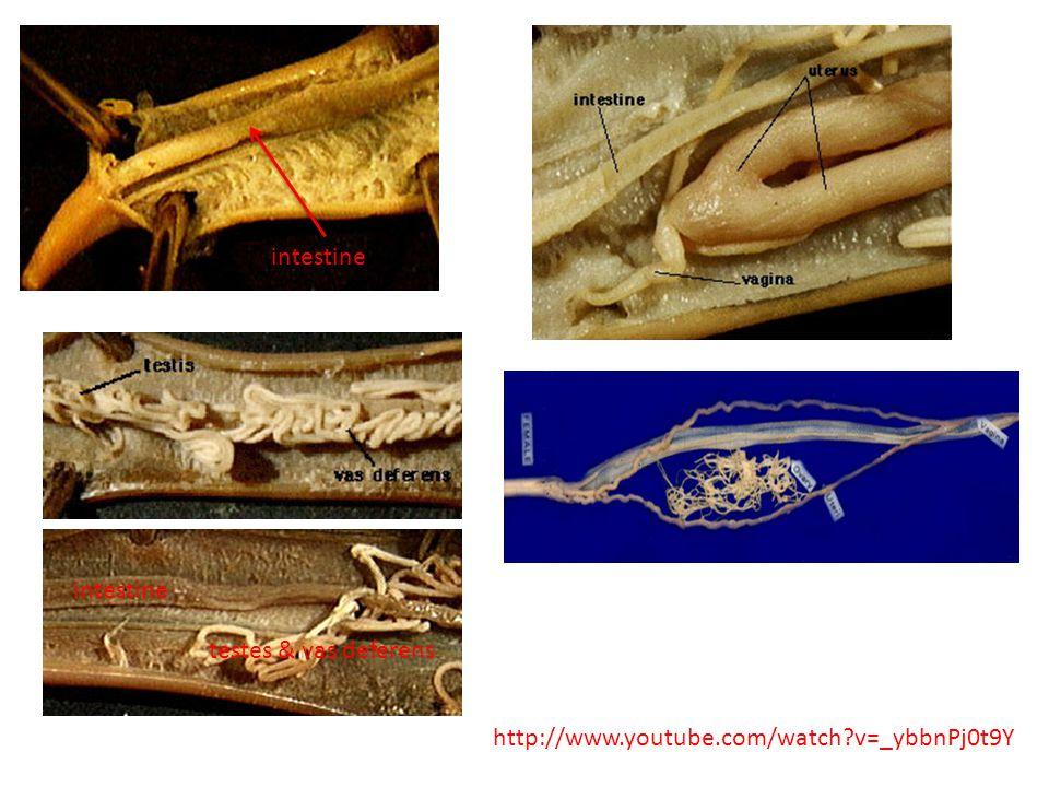 intestine http://www.youtube.com/watch?v=_ybbnPj0t9Y intestine testes & vas deferens