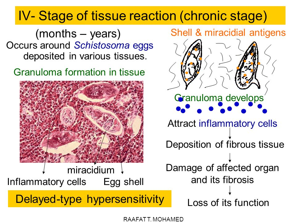 IV- Stage of tissue reaction (chronic stage) Occurs around Schistosoma eggs deposited in various tissues. Attract inflammatory cells Deposition of fib