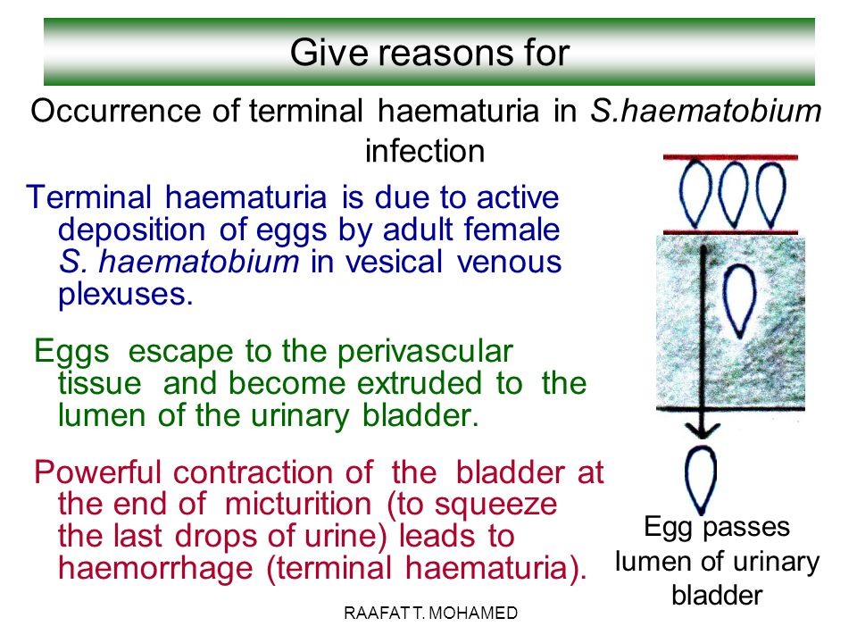 Give reasons for Terminal haematuria is due to active deposition of eggs by adult female S. haematobium in vesical venous plexuses. Eggs escape to the