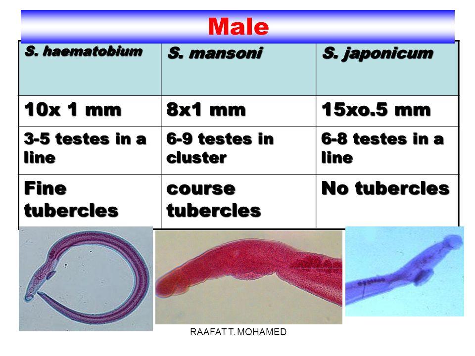 Female S.haematobium S. mansoniS. japonicum 20x0.2 mm14x0.15 mm26x0.3 mm Ovary post 1/3ovary ant.