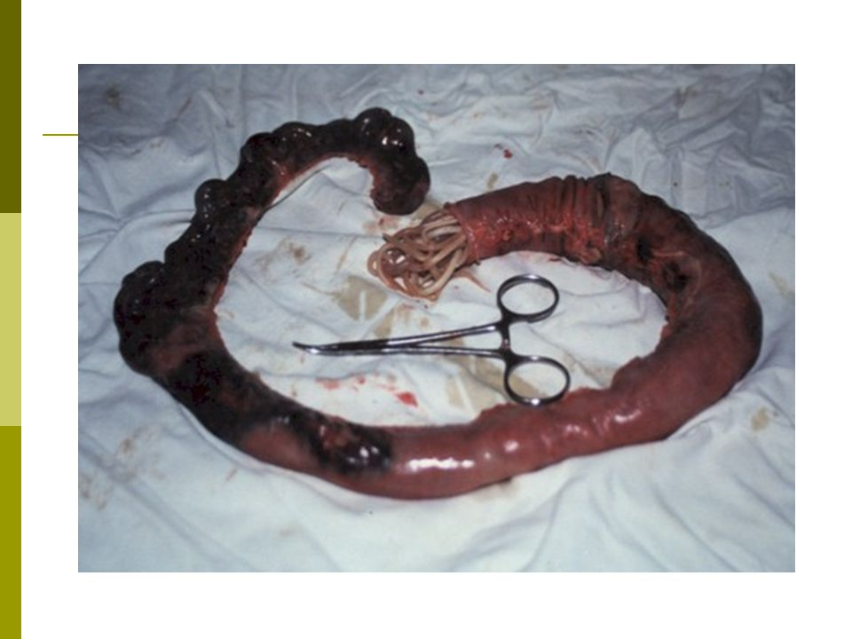 Roundworm When a host swallows the eggs, juveniles hatch and burrow through the intestinal wall.