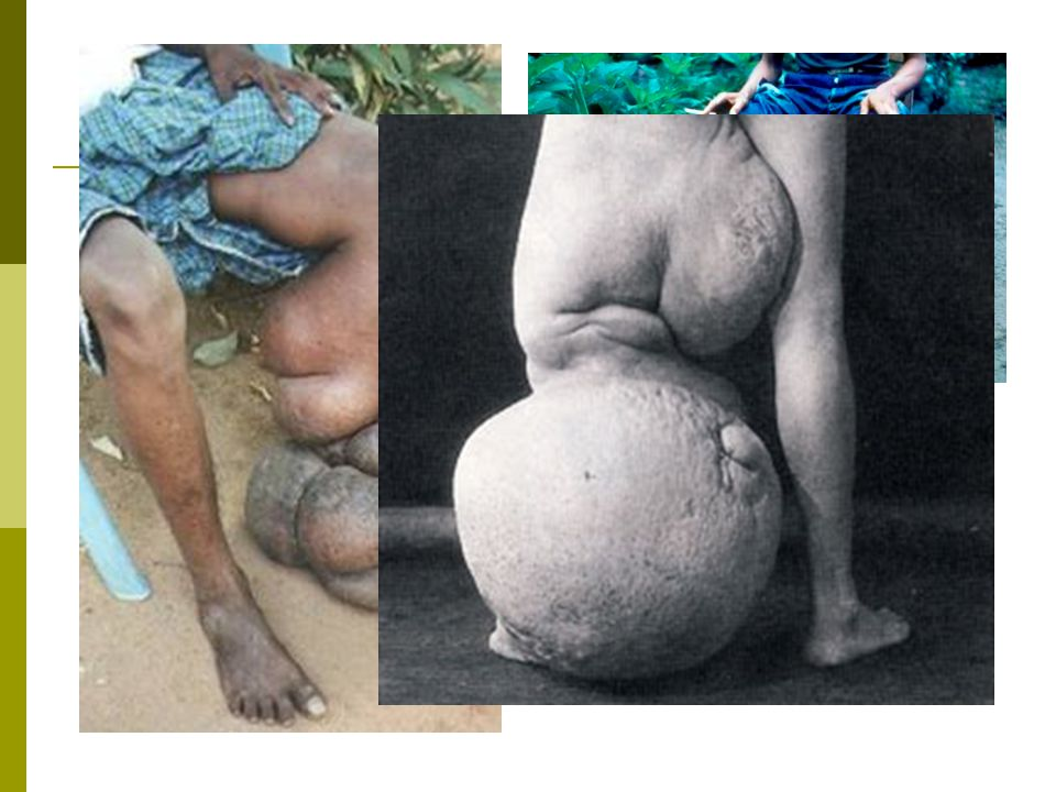 Elephantiasis Elephantiasis symptoms are apparent after long and repeated exposure to filarial worms.