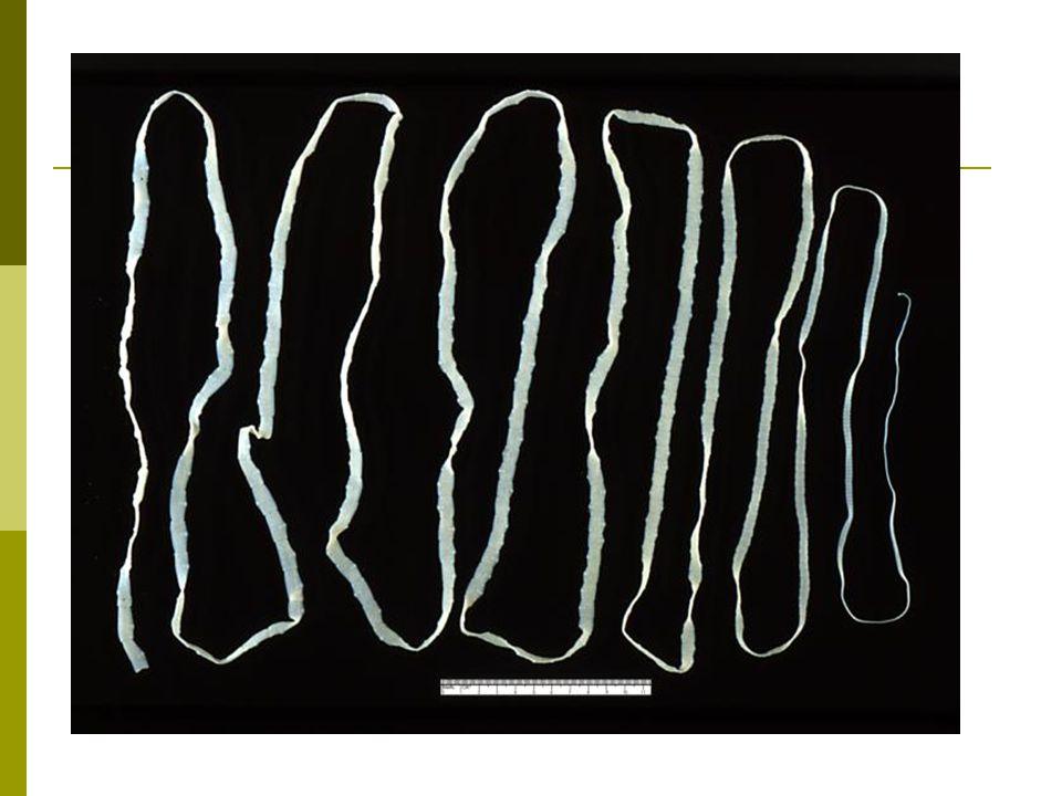 Tapeworm Parasitic flatworm Ingestion of contaminated/undercooked meat Malnutrition/ neurological damage
