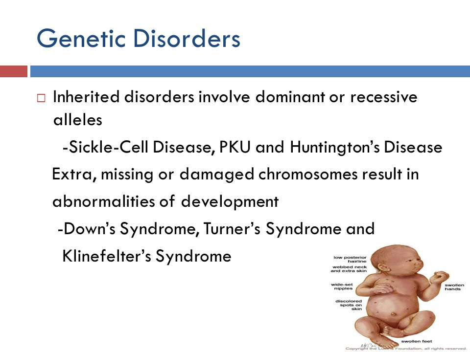 Genetic Disorders Inherited disorders involve dominant or recessive alleles -Sickle-Cell Disease, PKU and Huntingtons Disease Extra, missing or damage