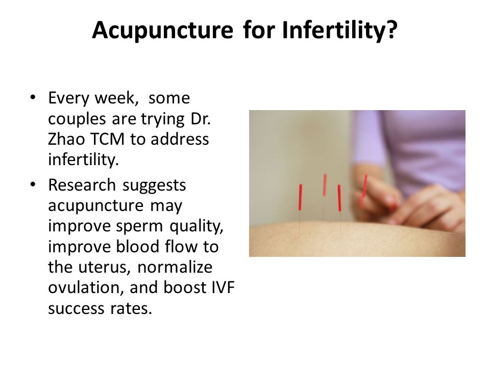 Acupuncture for Infertility.Every week, some couples are trying Dr.