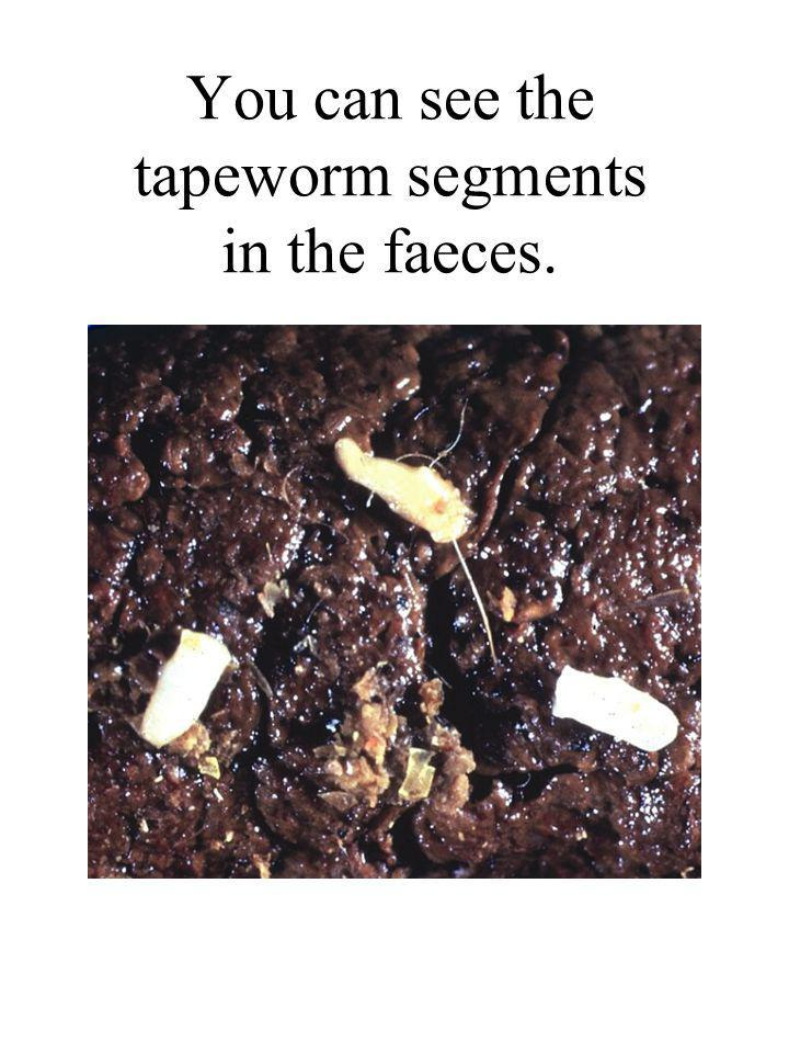 You can see the tapeworm segments in the faeces.