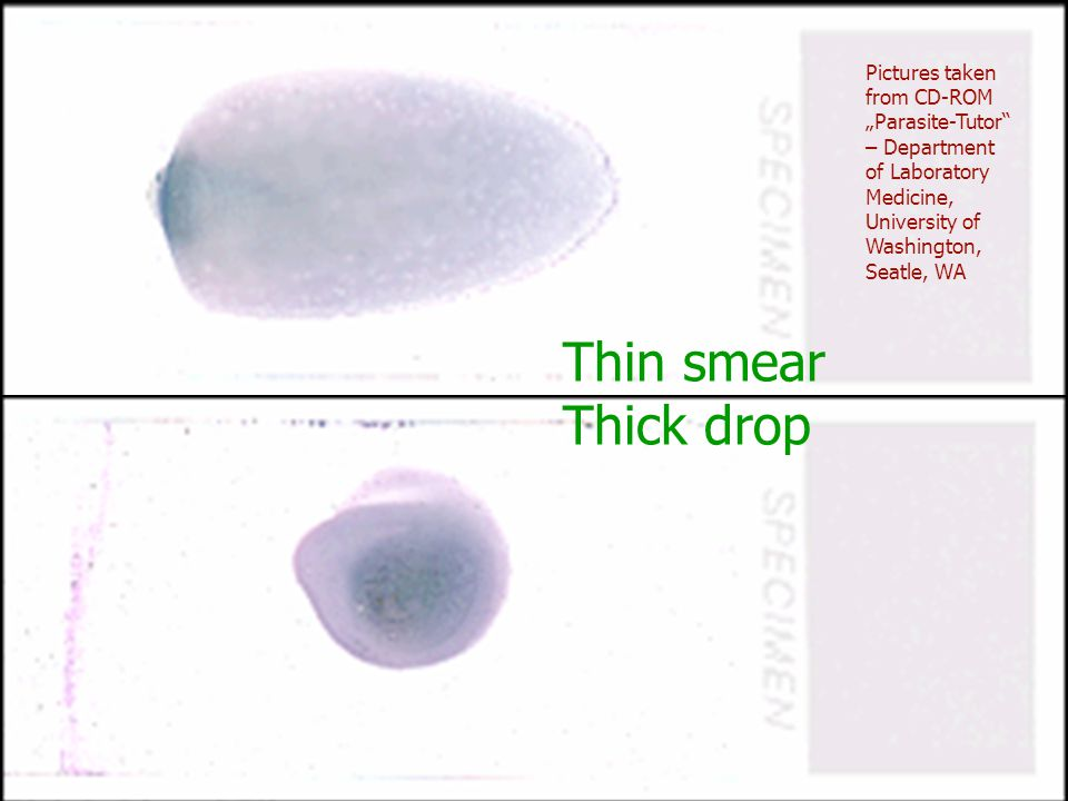 Thin smear Thick drop Pictures taken from CD-ROM Parasite-Tutor – Department of Laboratory Medicine, University of Washington, Seatle, WA