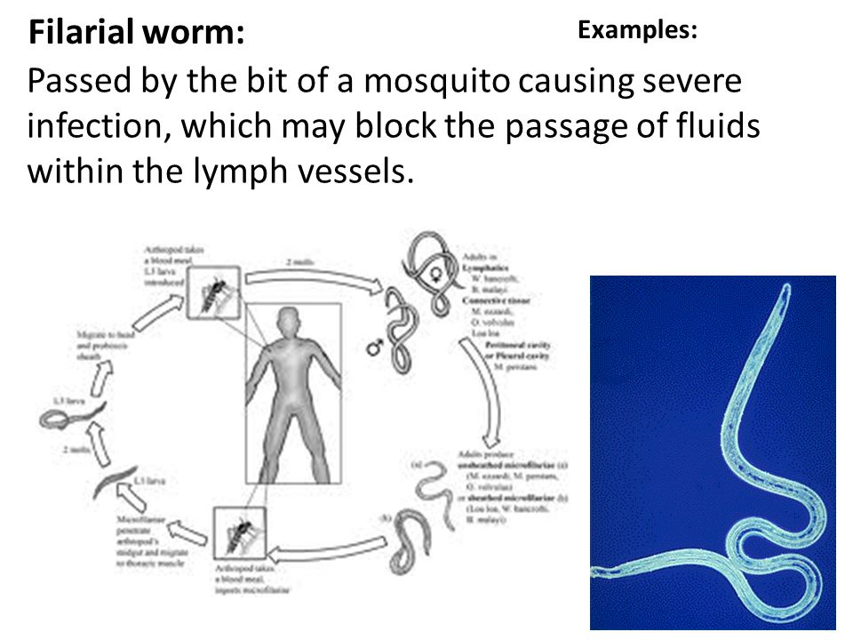 Filarial worm: Passed by the bit of a mosquito causing severe infection, which may block the passage of fluids within the lymph vessels. Examples: