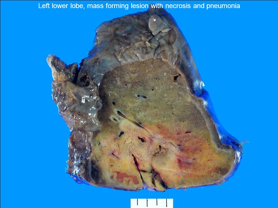Left lower lobe, mass forming lesion with necrosis and pneumonia
