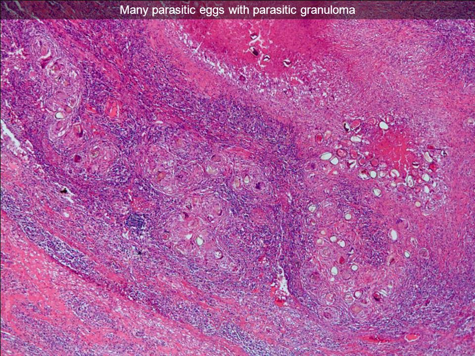 Many parasitic eggs with parasitic granuloma