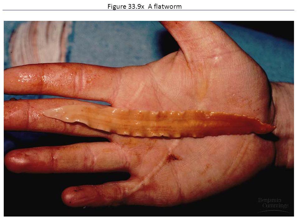 Figure 33.9x A flatworm