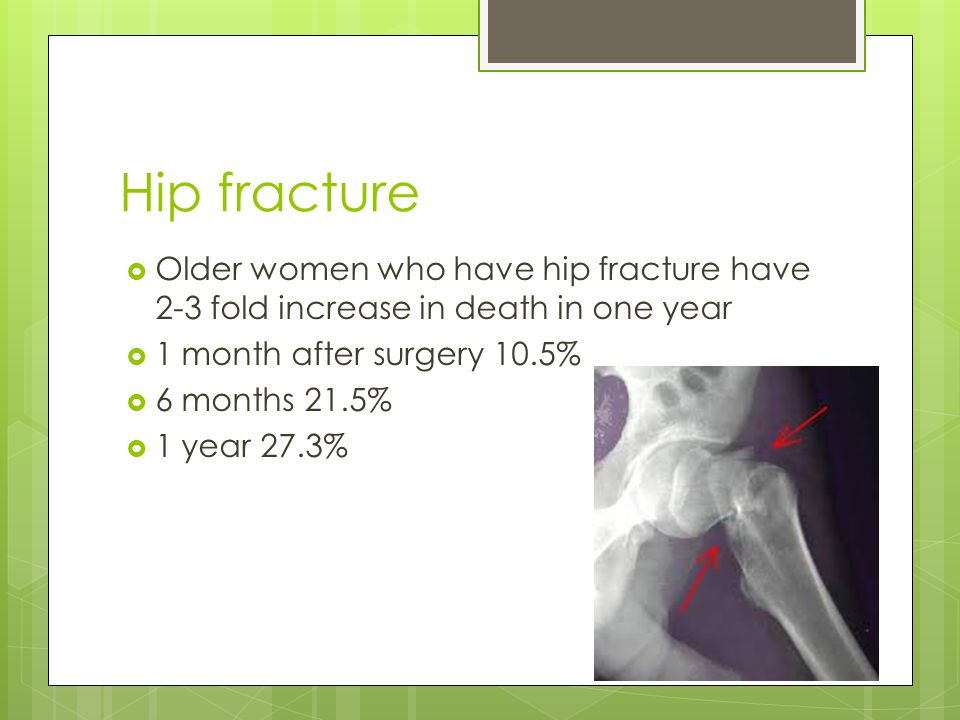 Hip fracture Older women who have hip fracture have 2-3 fold increase in death in one year 1 month after surgery 10.5% 6 months 21.5% 1 year 27.3%