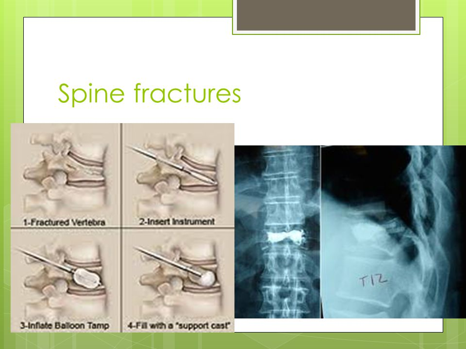 Spine fractures