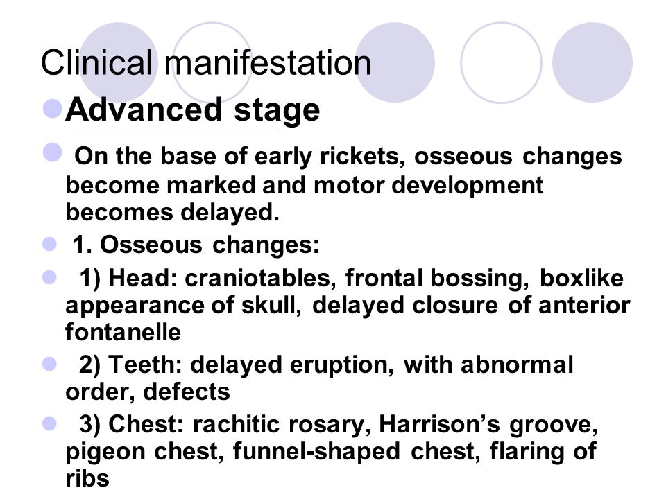 Clinical manifestation Advanced stage On the base of early rickets, osseous changes become marked and motor development becomes delayed.