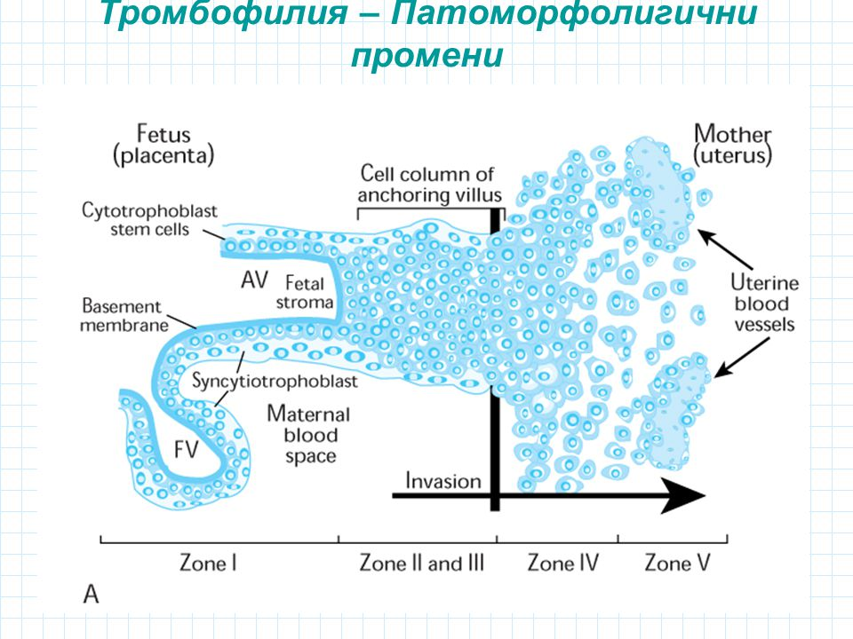 Тромбофилия – Патоморфолигични промени