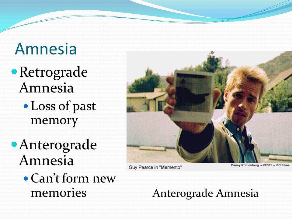 Amnesia  Retrograde Amnesia  Loss of past memory  Anterograde Amnesia  Can't form new memories Anterograde Amnesia