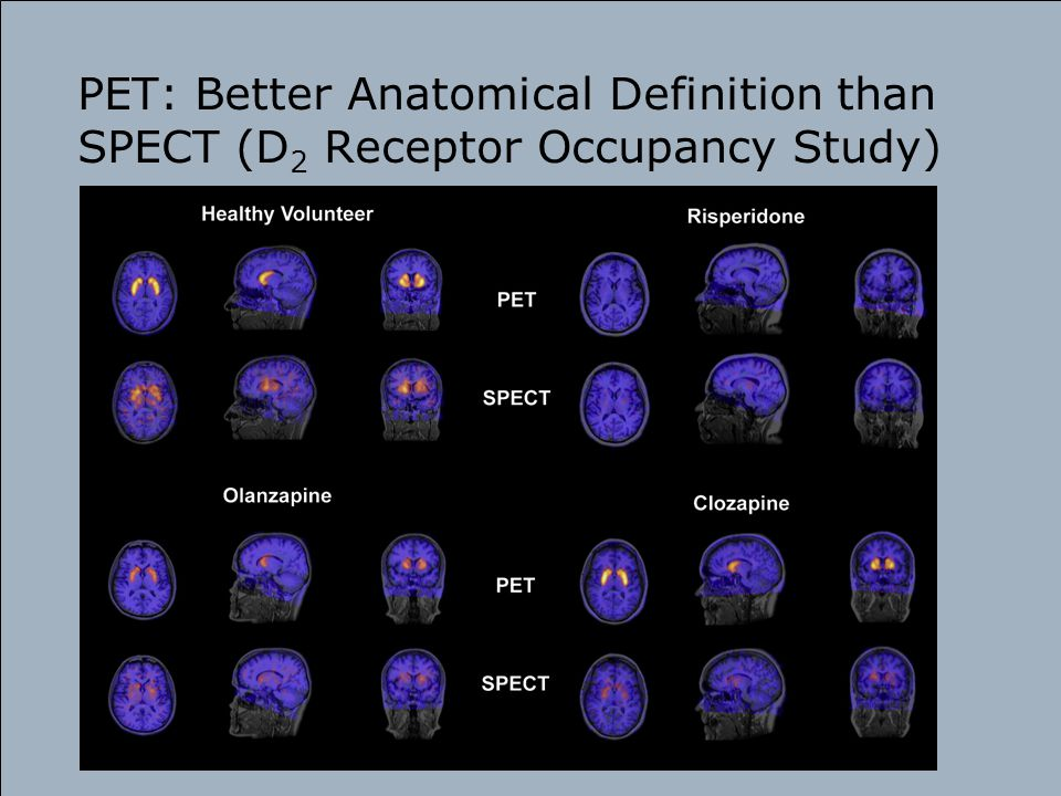 PET: Better Anatomical Definition than SPECT (D 2 Receptor Occupancy Study)