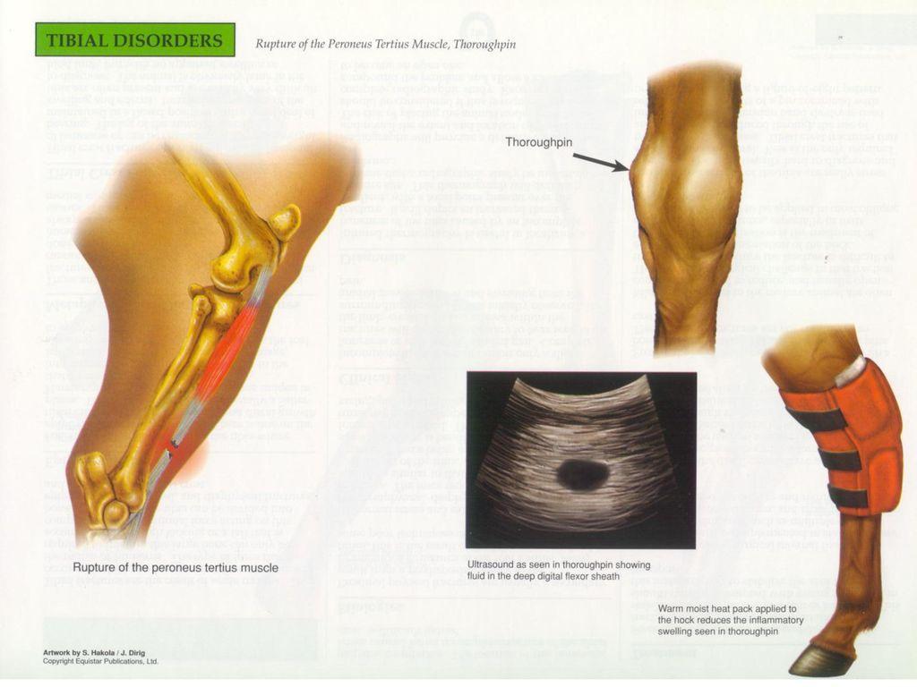Großzügig Anatomie Schläfenbeins Fotos - Anatomie Ideen - finotti.info