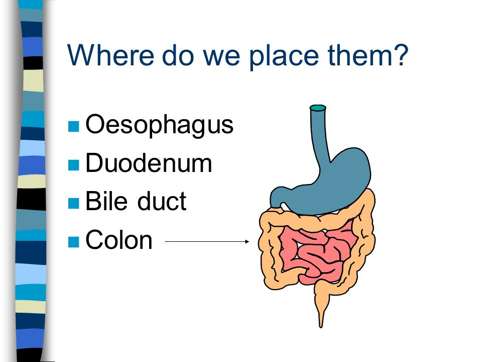 Where do we place them n Oesophagus n Duodenum n Bile duct n Colon
