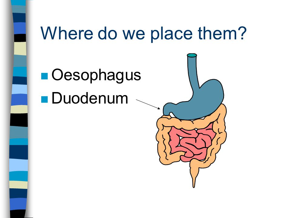 Where do we place them n Oesophagus n Duodenum