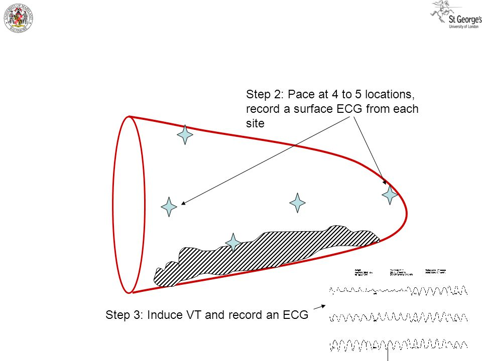 Step 2: Pace at 4 to 5 locations, record a surface ECG from each site Step 3: Induce VT and record an ECG