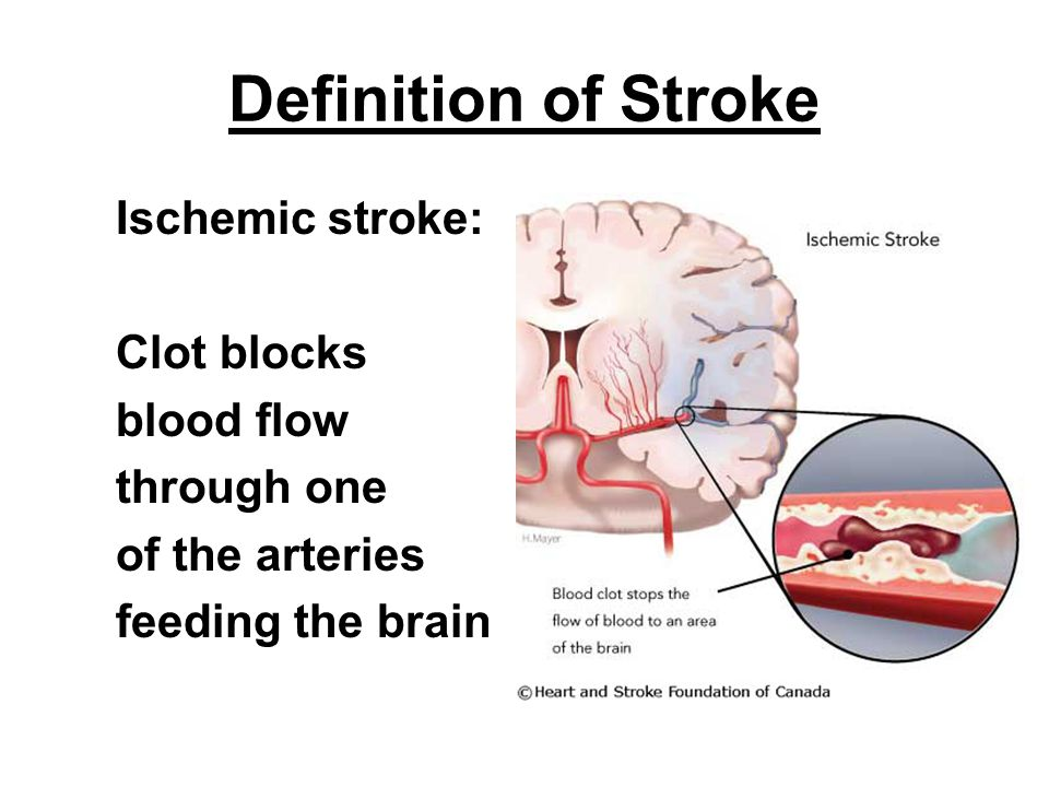 Signs and Symptoms of a Stroke Facial droop Arm drift