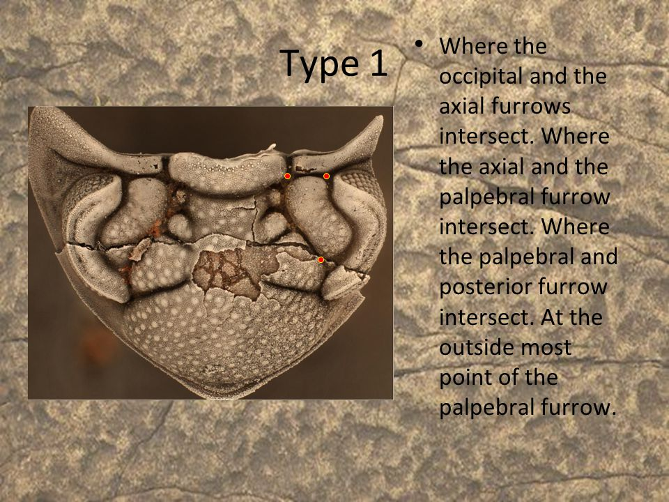 Type 1 Where the occipital and the axial furrows intersect. Where the axial and the palpebral furrow intersect. Where the palpebral and posterior furr