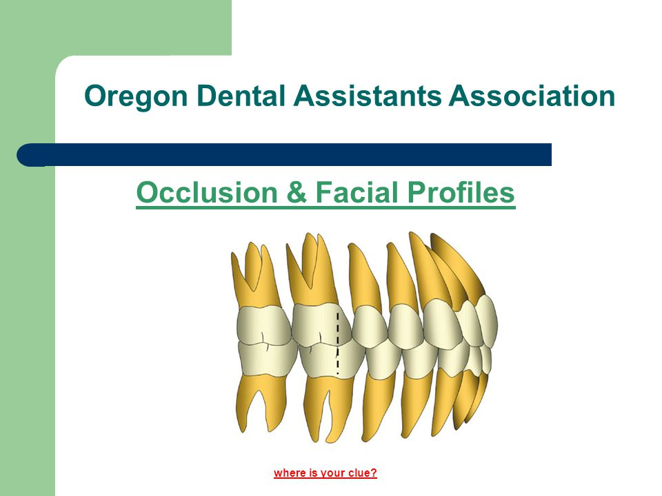 Angle's Classification of Occlusion Class III Also known as Mesial Occlusion Jay Leno, Carol Burnett - protruded jaw.