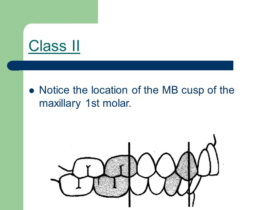 Angle's Classification of Occlusion Class II - Division 2 - Distal Occlusion - Bucky Beaver crowded.