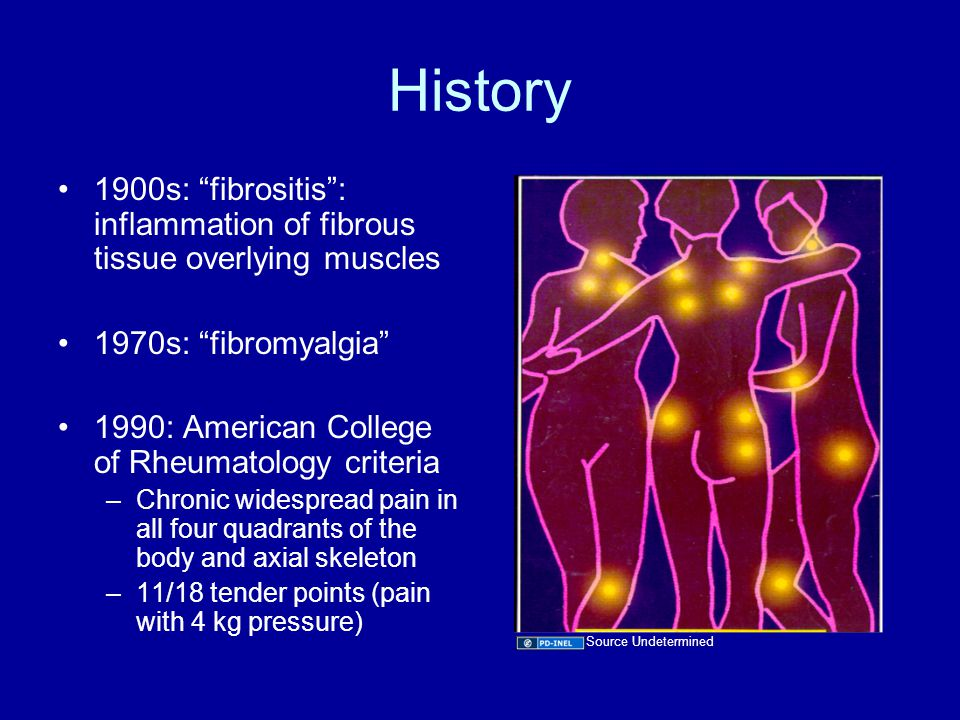 History 1900s: fibrositis : inflammation of fibrous tissue overlying muscles 1970s: fibromyalgia 1990: American College of Rheumatology criteria –Chronic widespread pain in all four quadrants of the body and axial skeleton –11/18 tender points (pain with 4 kg pressure) Source Undetermined