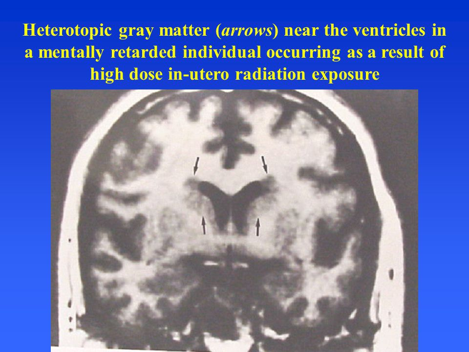 Heterotopic gray matter (arrows) near the ventricles in a mentally retarded individual occurring as a result of high dose in-utero radiation exposure