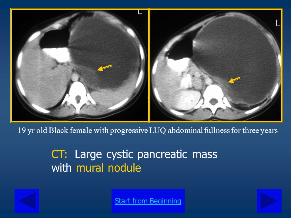 Start from Beginning CT: Large cystic pancreatic mass with mural nodule 19 yr old Black female with progressive LUQ abdominal fullness for three years