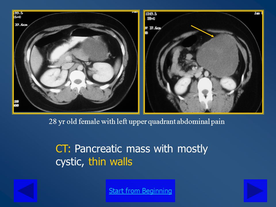 Start from Beginning CT: Pancreatic mass with mostly cystic, thin walls 28 yr old female with left upper quadrant abdominal pain