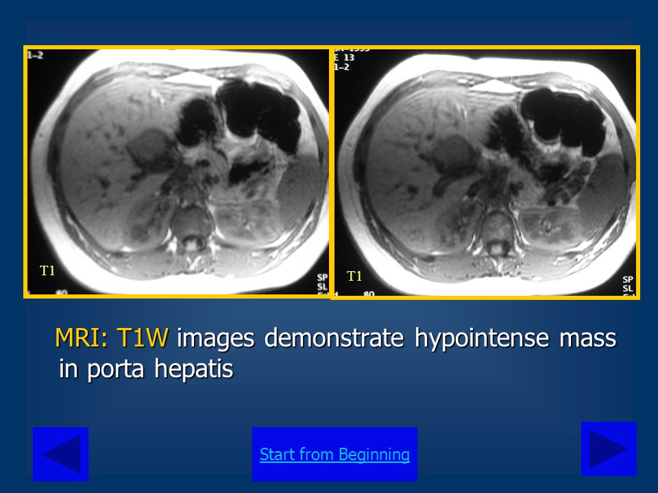 Start from Beginning MRI: T1W images demonstrate hypointense mass in porta hepatis MRI: T1W images demonstrate hypointense mass in porta hepatis T1