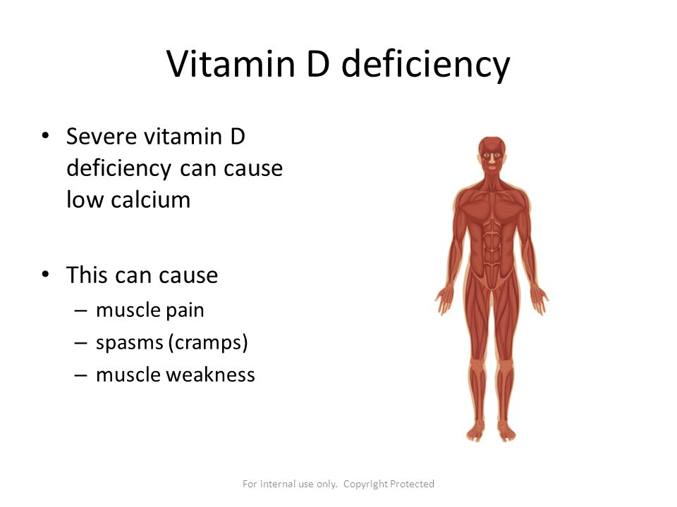 For internal use only. Copyright Protected Vitamin D deficiency Severe vitamin D deficiency can cause low calcium This can cause – muscle pain – spasm