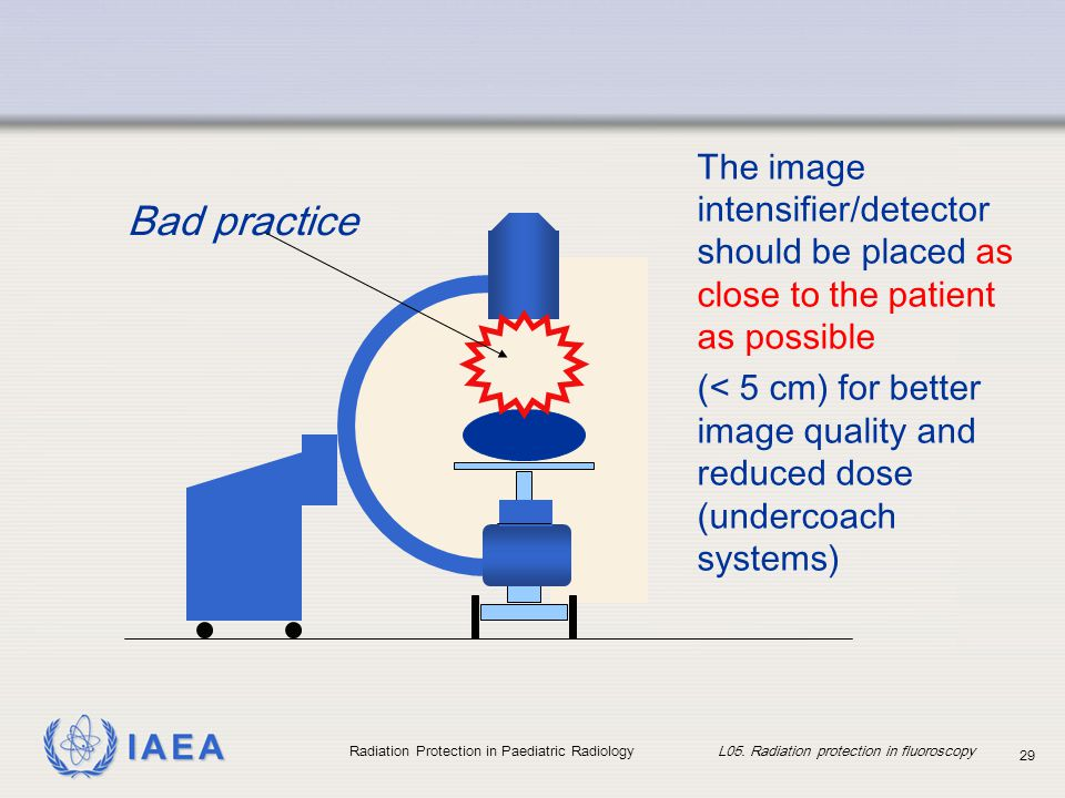 IAEA Radiation Protection in Paediatric Radiology L05. Radiation protection in fluoroscopy 29 Bad practice The image intensifier/detector should be pl