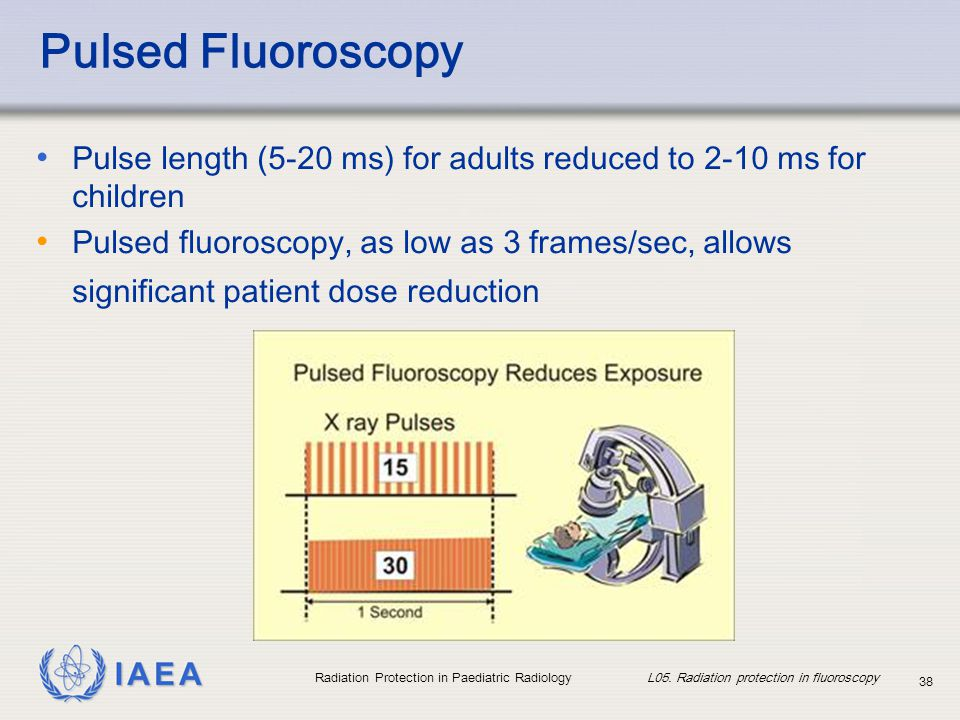 IAEA Radiation Protection in Paediatric Radiology L05. Radiation protection in fluoroscopy 38 Pulsed Fluoroscopy Pulse length (5-20 ms) for adults red