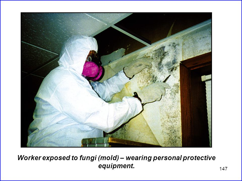 147 Worker exposed to fungi (mold) – wearing personal protective equipment.