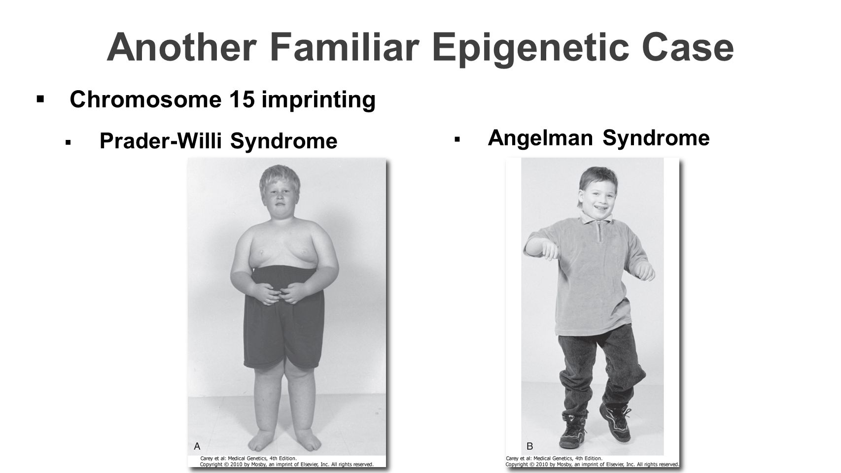 Another Familiar Epigenetic Case  Prader-Willi Syndrome  Angelman Syndrome  Chromosome 15 imprinting