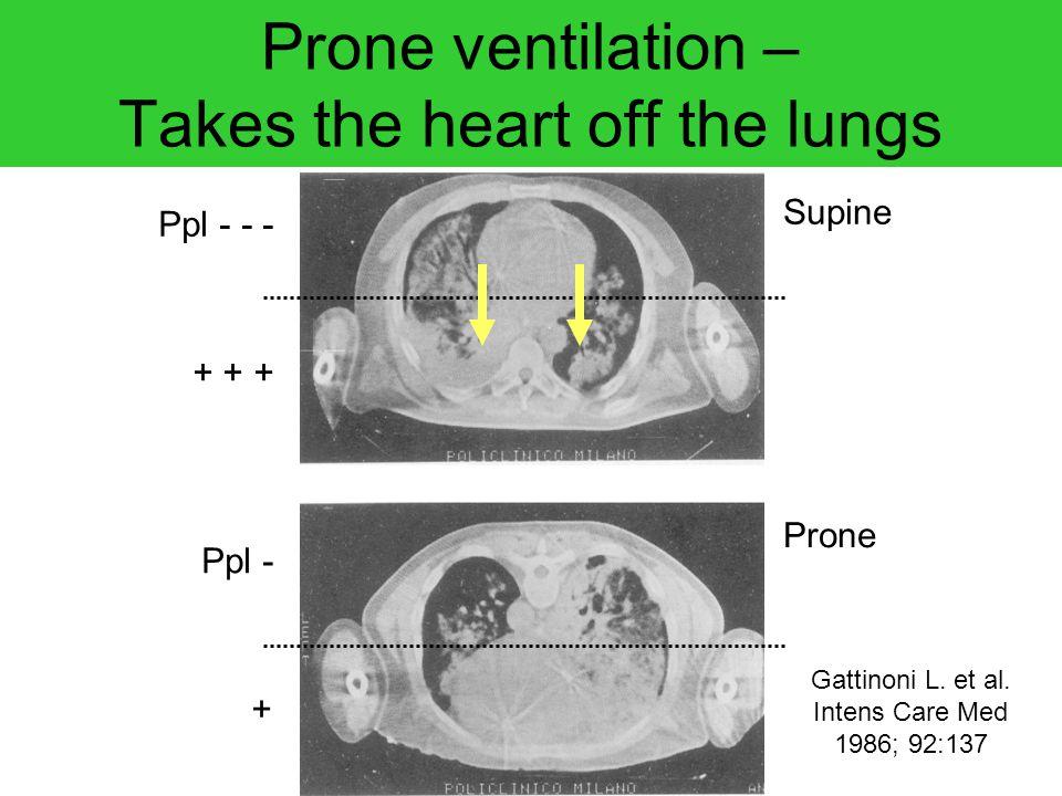 Supine Prone Ppl - - - + + + Ppl - + Gattinoni L. et al. Intens Care Med 1986; 92:137 Prone ventilation – Takes the heart off the lungs
